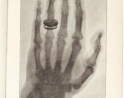 187. röntgen, ueber eine neue art von strahlen, wurzburg, 1896