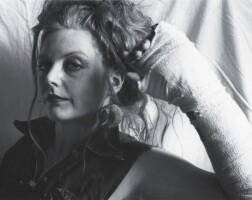 5. sue barnes | self portrait with broken arm